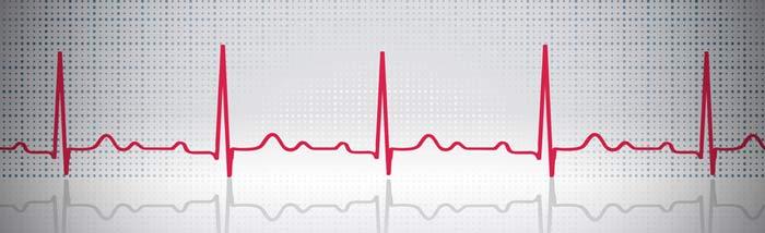 Défibrillateur : c'est quoi ?